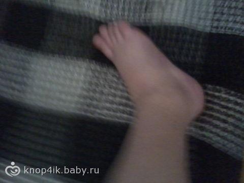 Беременность 37 недель отеки на ногах и руках