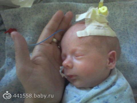 роды в 30 недель беременности фото