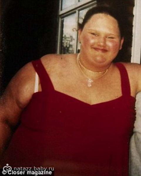 Толстые девушки до и после похудения фото