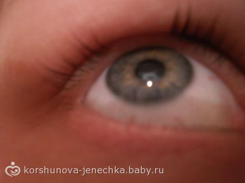 Проблема с ресницами((((