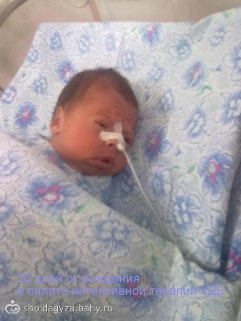 Фото детей рожденных в 33 недели