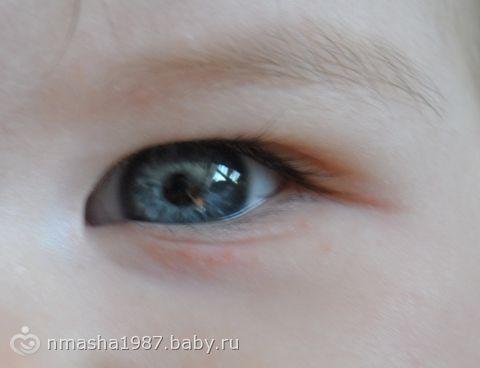 Мелкая сыпь под глазом (фото)!