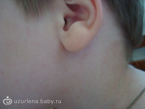 Красные пятна под ушами у ребенка фото